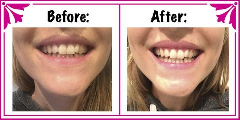 molr charcoal teeth whitening reviews