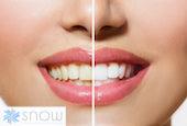 snow teeth whitening kit reviews