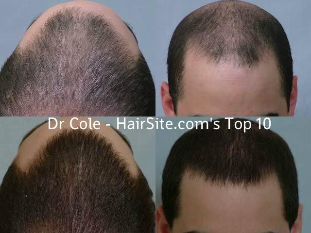 dr cole hair transplant reviews