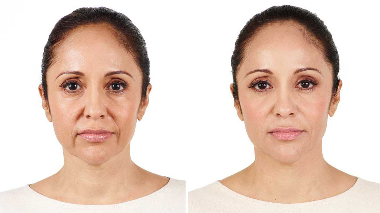 juvederm reviews long does last