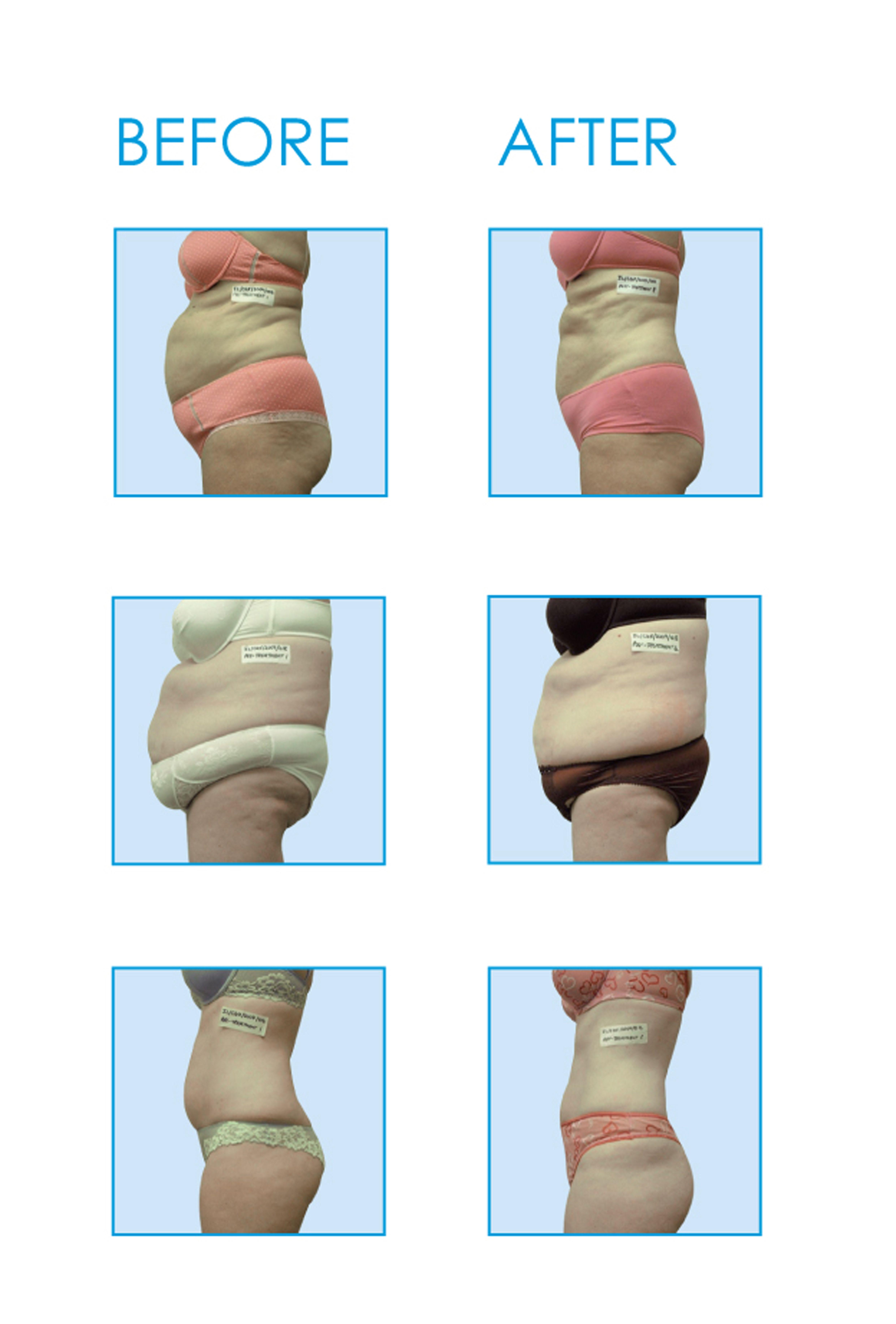 i lipo laser fat reduction treatment reviews