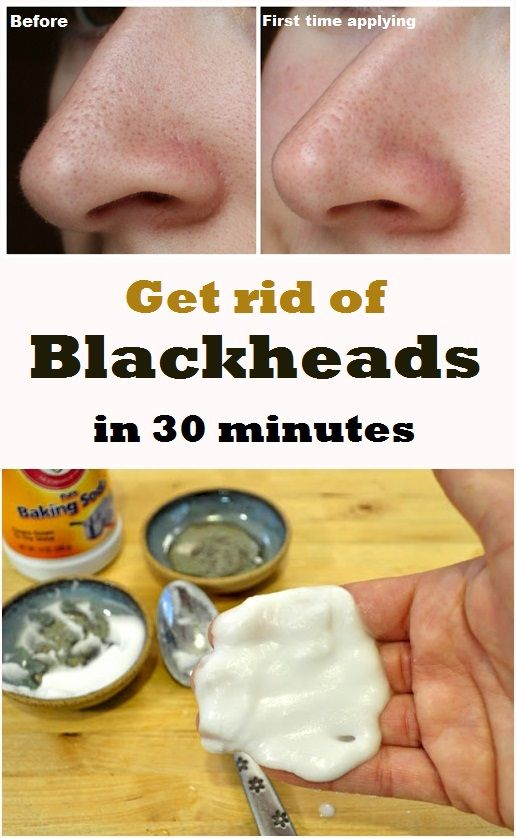 baking soda for blackheads reviews
