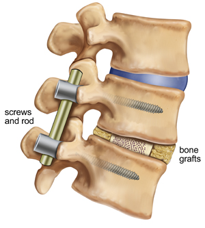 spinal fusion surgery patient reviews